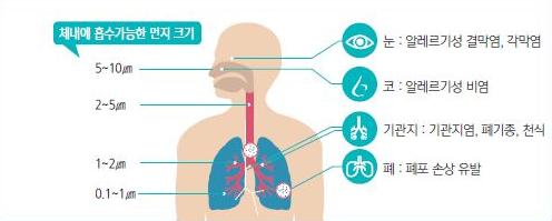 체내에 흡수가능한 먼지 크기와 미세먼지가 건강에 미치는 영향 그림입니다. 눈: 알레르기성 결막염, 각막염 코: 알레르기성 비염 기관지: 기관지염, 폐기종, 천식 페: 폐포 손상 유발